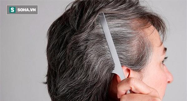 Xem vị trí tóc bạc đoán bệnh của gan, thận, dạ dày, lá lách - Ảnh 2.