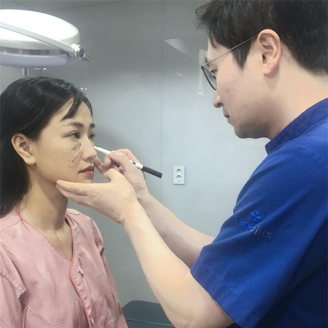 Maya tự tin khoe ảnh khuôn mặt vừa phẫu thuật thẩm mỹ tại Hàn Quốc - Ảnh 2.