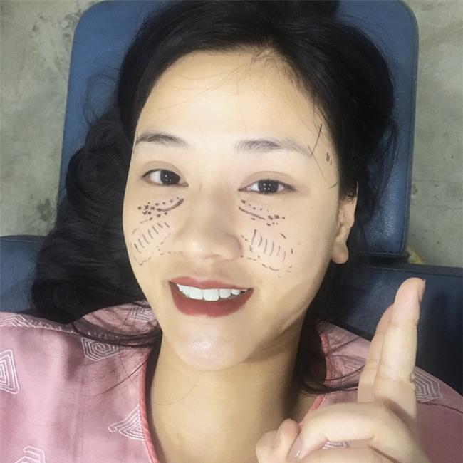 Maya tự tin khoe ảnh khuôn mặt vừa phẫu thuật thẩm mỹ tại Hàn Quốc - Ảnh 3.