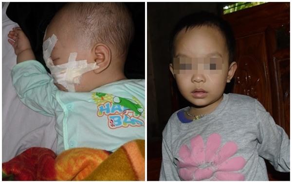 Gặp lại cô bé mới 6 tháng tuổi đã bị kẻ ác chém trọng thương bên thi thể người mẹ - Ảnh 2.