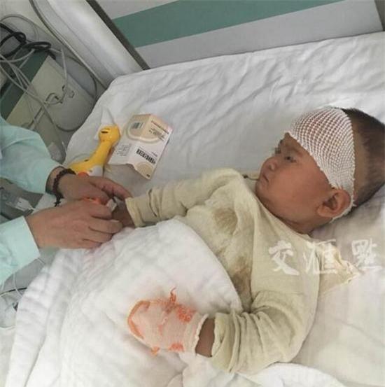Bất mãn vì bị chồng bạo hành, mẹ cắn con 1 tuổi trọng thương - Ảnh 1.