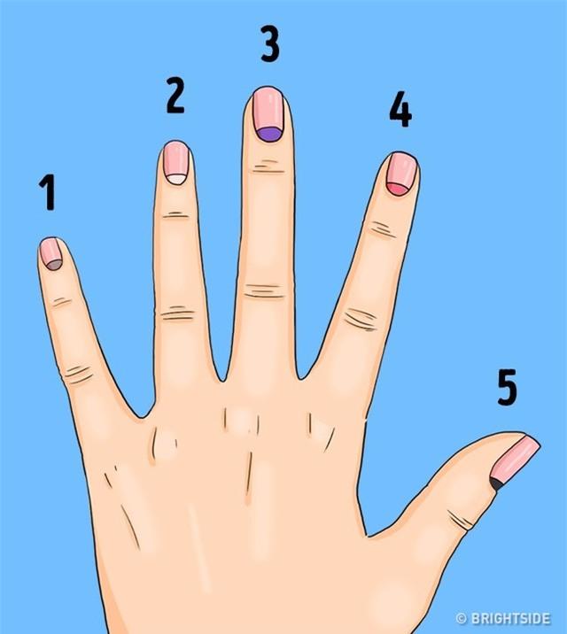 Bộ phận nhỏ của móng tay ít được chú ý này lại có thể báo hiệu nhiều căn bệnh nguy hiểm - Ảnh 2.