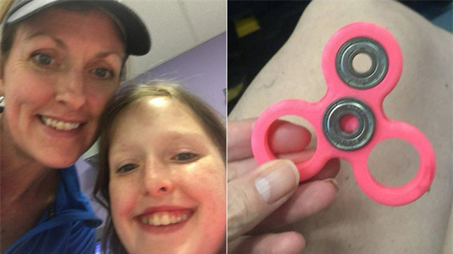Cảnh giác: Một người mẹ suýt mất con gái 8 tuổi chỉ vì món đồ chơi thời thượng spinner - Ảnh 3.