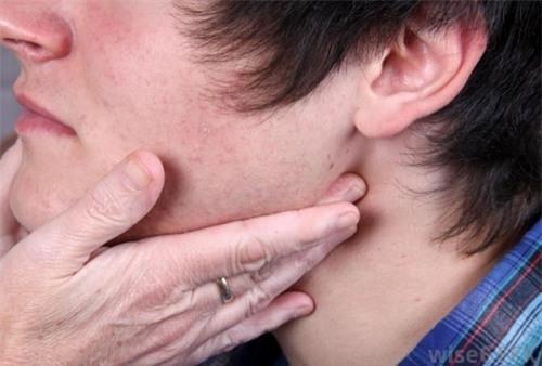 ung thư, ung thư vòm họng