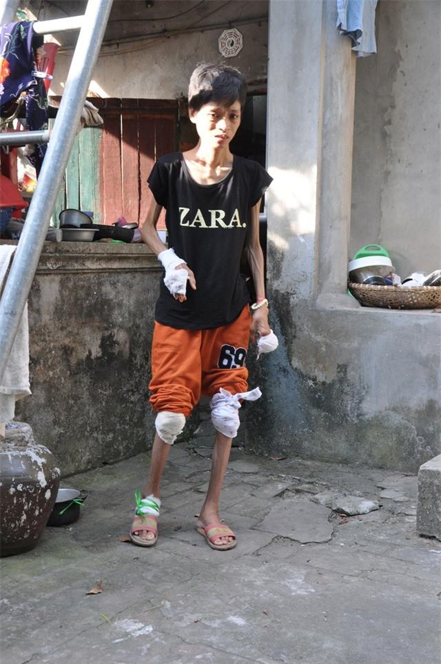 Bị bệnh viêm đa khớp đã 6 năm nay khiến cho cơ thể chị Dung bị phá hủy chỉ còn như bộ xương di động.