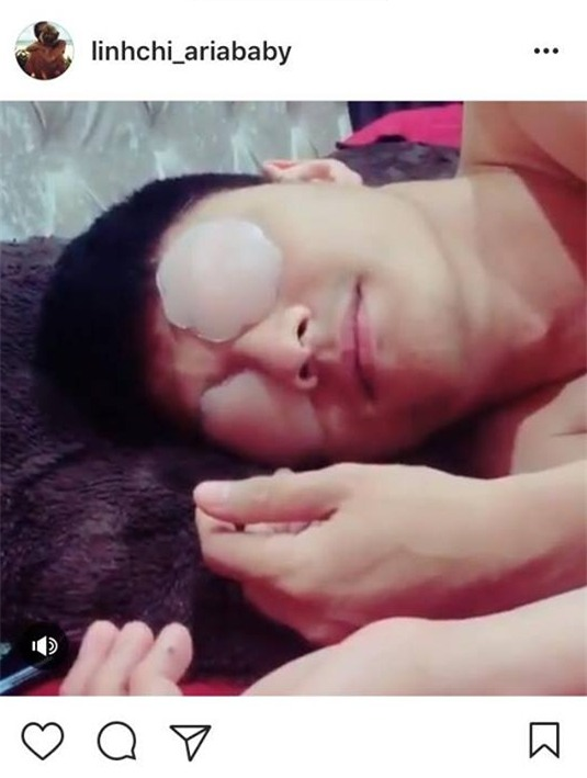 Linh Chi đăng clip đùa giỡn phản cảm, up miếng dán ngực lên mắt Lâm Vinh Hải - Ảnh 2.