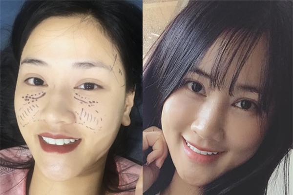 Sau 22 ngày phẫu thuật thẩm mỹ, khuôn mặt Maya khiến nhiều người không nhận ra - Ảnh 4.
