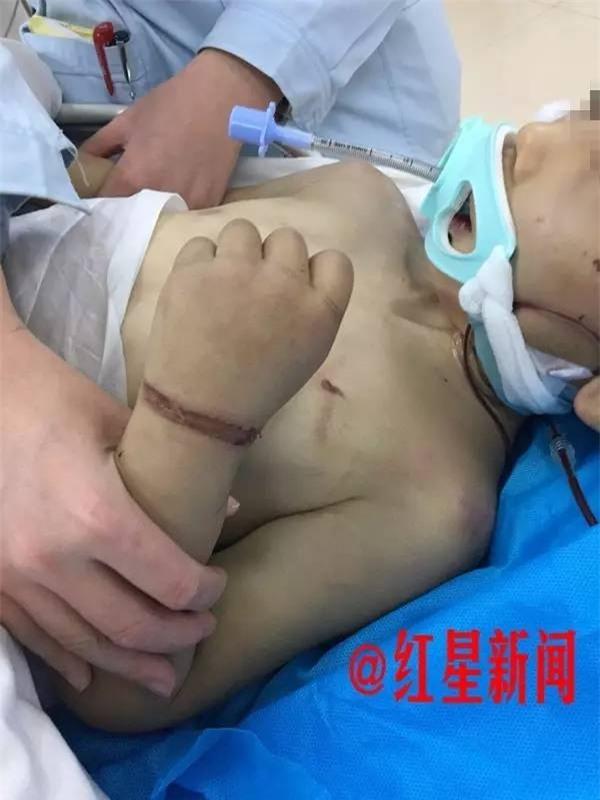 Đến thăm con, mẹ chết lặng khi phát hiện con trai bị vợ hai của chồng đánh đập thậm tệ - Ảnh 3.
