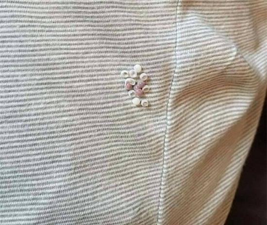 Rút quần áo phơi ngoài trời thấy hiện tượng này phải cẩn thận, có thể sẽ nguy hiểm đấy! - Ảnh 2.