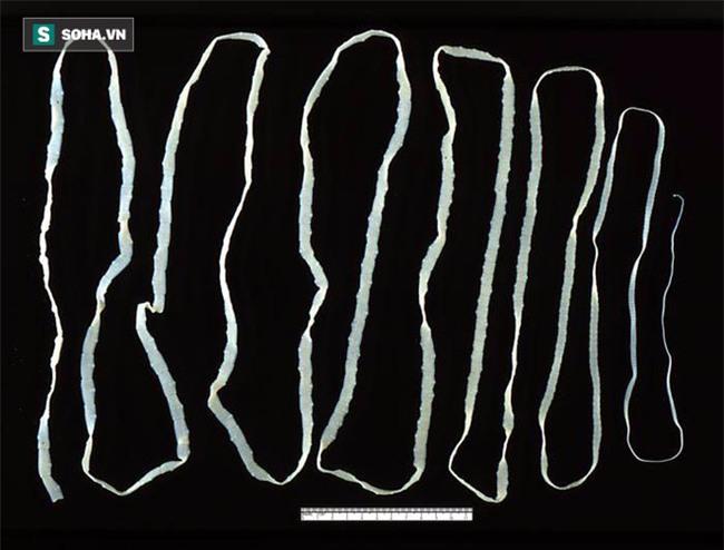 Sán dây dài 2,6 mét ngọ nguậy trong bụng vì ăn món nhiều người thích - Ảnh 2.