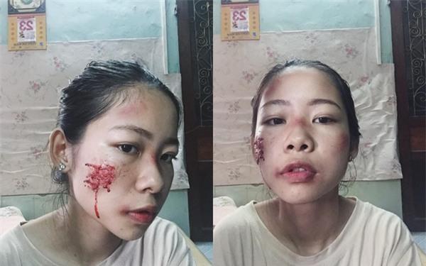 Sự thật về cô gái xinh xắn bị đánh ghen bầm dập khiến dân mạng xôn xao - Ảnh 1.