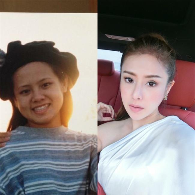 Thái Lan: Đập mặt đi xây lại, cô gái trẻ có cuộc sống mới vô cùng sang chảnh, hạnh phúc - Ảnh 1.