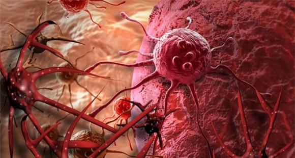 Chất chống ung thư, Ung thư, Gừng sấy khô