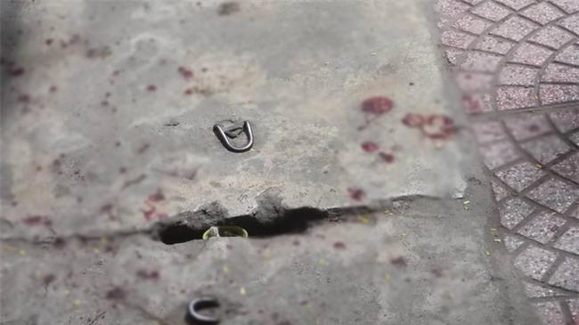 Bảo vệ bệnh viện bị người nhà bệnh nhân dùng dao đâm nguy kịch - Ảnh 2.
