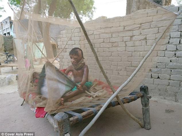 Bố tạt axit đánh ghen với mẹ, bé gái 4 tuổi trở thành nạn nhân đáng thương nhất với khuôn mặt hoàn toàn biến dạng - Ảnh 2.