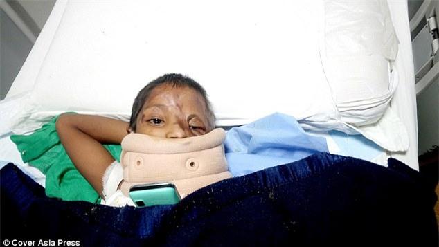 Bố tạt axit đánh ghen với mẹ, bé gái 4 tuổi trở thành nạn nhân đáng thương nhất với khuôn mặt hoàn toàn biến dạng - Ảnh 3.