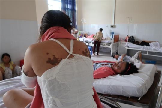 Lời kể kinh hoàng của 4 nạn nhân bị tạt a xít - Ảnh 8.