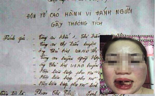 Phó Chủ tịch HĐND thị trấn đánh chị dâu gãy 5 cái răng