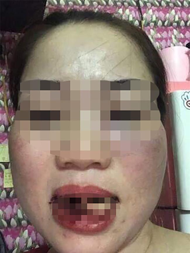 Phó Chủ tịch HĐND thị trấn đánh chị dâu gãy 5 cái răng - Ảnh 2.
