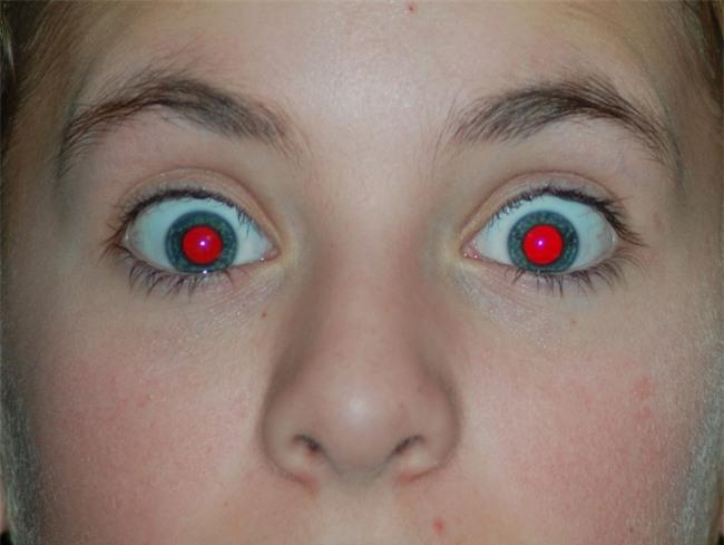Vì sao đôi lúc chụp ảnh chúng ta bị hiện tượng mắt đỏ? Và đây là cách khắc phục trong 5 giây - Ảnh 1.