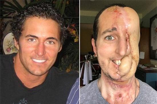 Mất nửa mặt vì ung thư, người đàn ông vẫn quyết tâm truyền cảm hứng về cuộc sống - Ảnh 1.