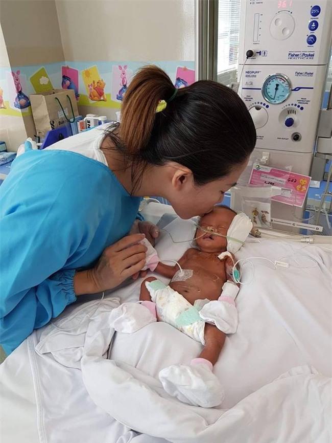 Hành trình giành lại con gái mới chào đời từ tay tử thần của nữ giám đốc: Cảm nhận sức sống mãnh liệt từ con - Ảnh 4.