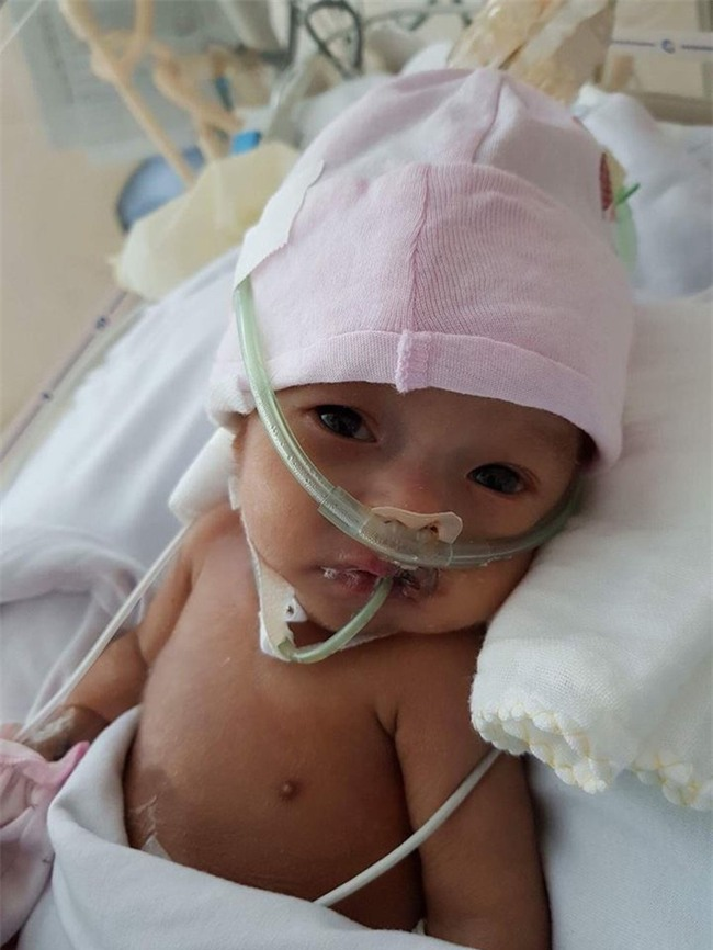 Hành trình giành lại con gái mới chào đời từ tay tử thần của nữ giám đốc: Cảm nhận sức sống mãnh liệt từ con - Ảnh 8.