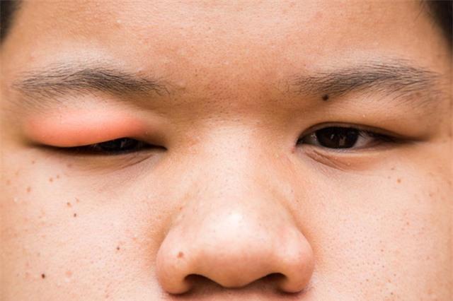 Lẹo mắt là một loại nhiễm trùng có thể gây sưng mi mắt.