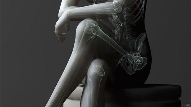 4 thói quen làm lệch khung xương chậu mà con gái cần tránh ngay - Ảnh 3.