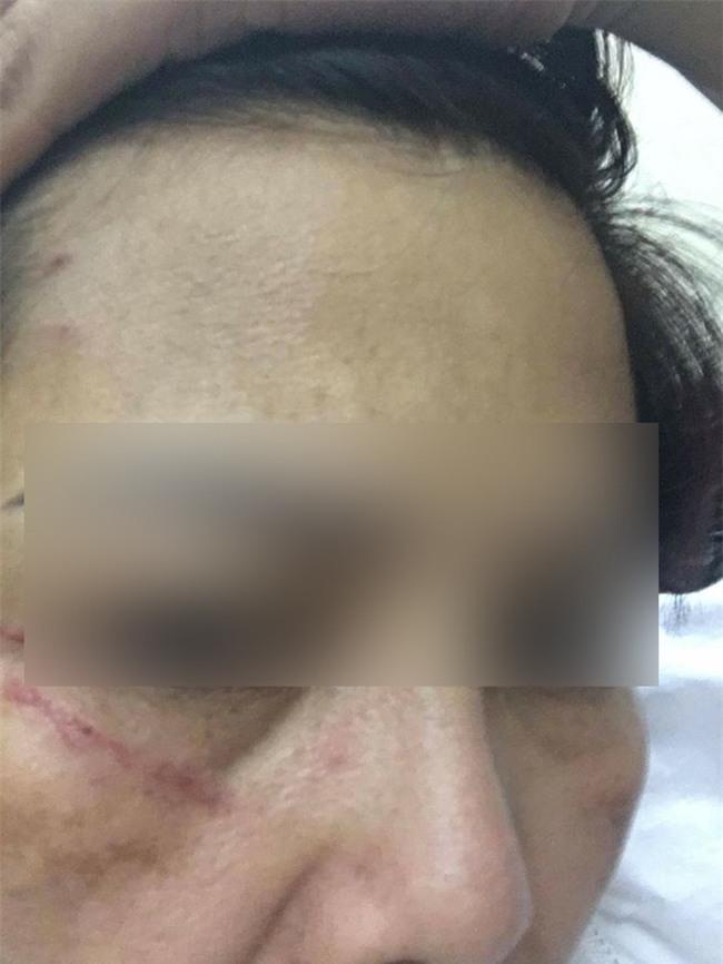 Hà Nội: Hai người phụ nữ đánh nhau ngay tại ngân hàng vì số thứ tự xếp hàng - Ảnh 3.