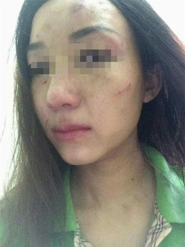 Tố giò me làm bẩn, làm nhái trên facebook, người phụ nữ bị đánh bầm dập - Ảnh 2.