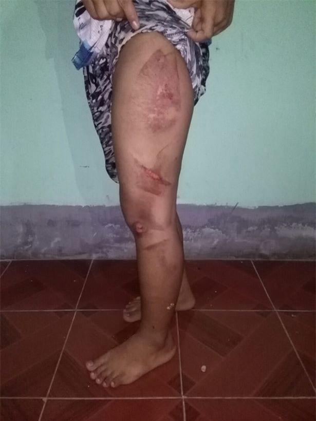 Cô bé 13 tuổi đi làm giúp việc bị chủ nhà dùng bàn là nóng bạo hành rồi đổ nước sôi lên người - Ảnh 2.