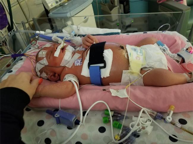 Chỉ vì một nụ hôn của người lạ, bé gái 18 ngày tuổi đã chết vì lây nhiễm virus viêm màng não - Ảnh 3.