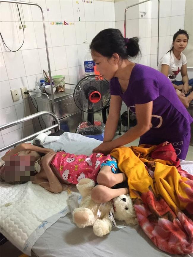 Chuỗi ngày đau đớn của bé gái 11 tuổi, mồ côi cha, bị khối u quái ác che kín mặt - Ảnh 1.