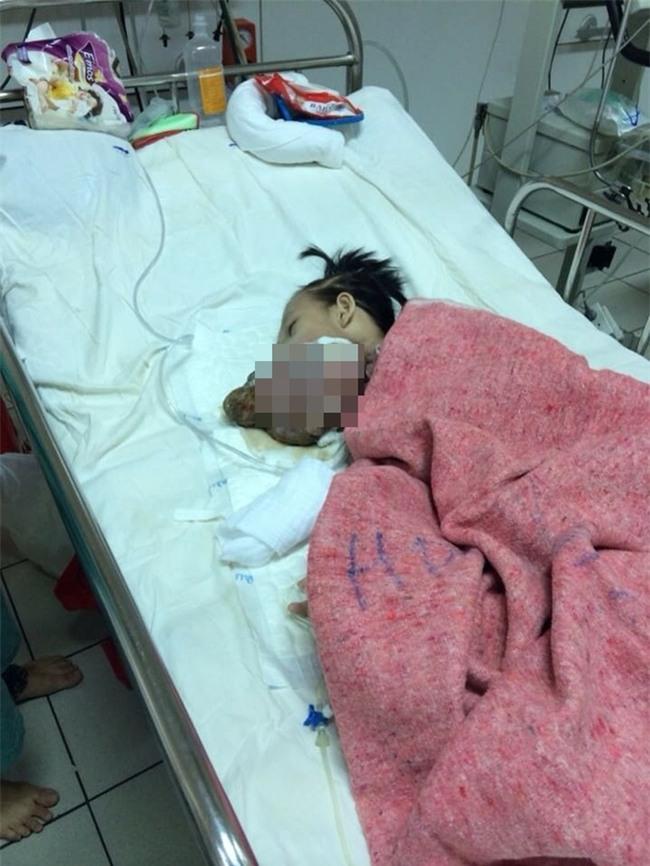 Chuỗi ngày đau đớn của bé gái 11 tuổi, mồ côi cha, bị khối u quái ác che kín mặt - Ảnh 3.