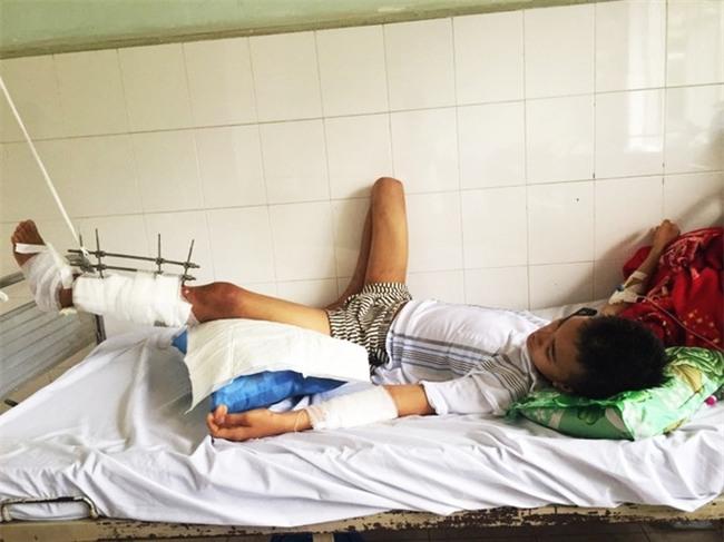 Thiếu niên máu hiếm bị xe cán nát đôi chân, mẹ khẩn cầu cộng đồng mạng và kết quả khiến nhiều người xúc động - Ảnh 1.