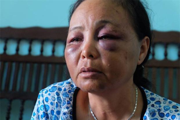 Người phụ nữ bán tăm bị đánh oan vì tưởng bắt cóc trẻ em: Chỉ vì lời 1 cô gái mà họ lao vào đấm, đá túi bụi chúng tôi - Ảnh 4.