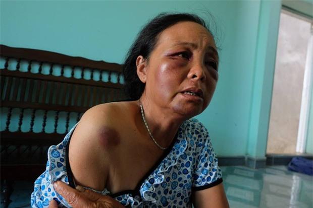 Người phụ nữ bán tăm bị đánh oan vì tưởng bắt cóc trẻ em: Chỉ vì lời 1 cô gái mà họ lao vào đấm, đá túi bụi chúng tôi - Ảnh 5.