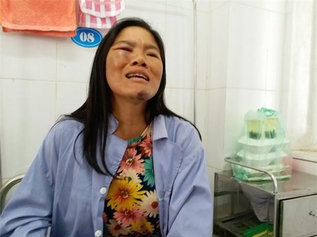 Gia cảnh kiệt quệ của người phụ nữ bán tăm bị đánh oan đến nhập viện vì nghi bắt cóc - Ảnh 1.