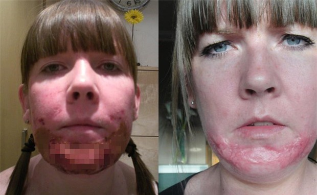 Đi lột da mặt, người phụ nữ nhận cái kết thảm thương khi mặt bị phồng rộp và để lại sẹo suốt đời - Ảnh 1.