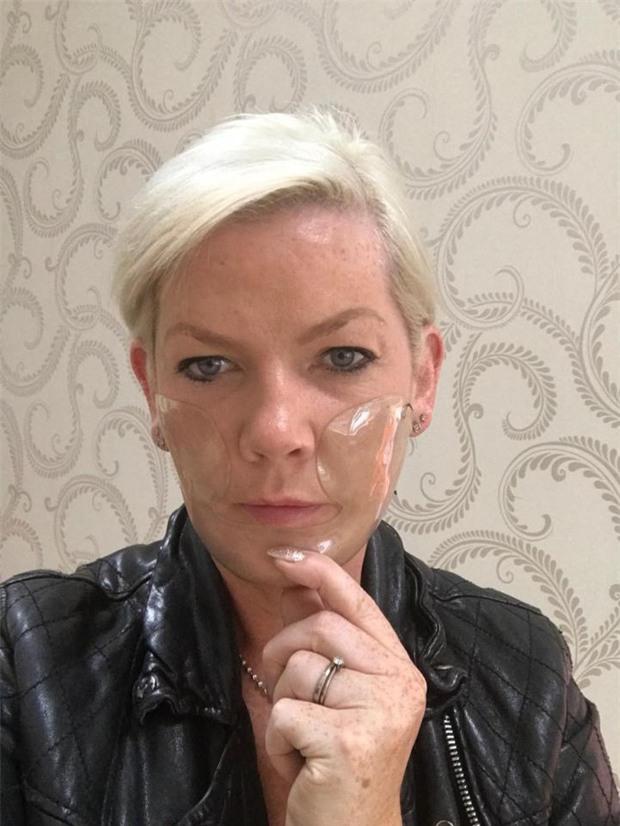 Đi lột da mặt, người phụ nữ nhận cái kết thảm thương khi mặt bị phồng rộp và để lại sẹo suốt đời - Ảnh 2.