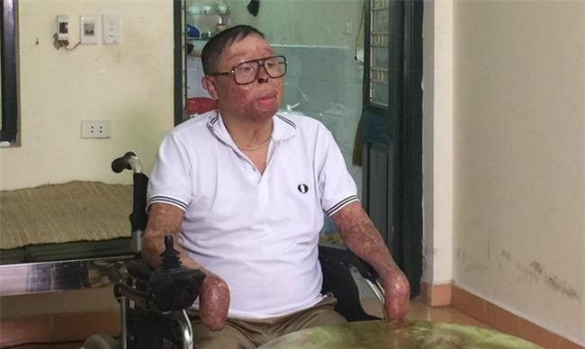 Chiến sỹ sống sót vụ máy bay rơi Hòa Lạc: Có hiến cho tôi tay thật cũng khó ghép nổi - Ảnh 1.
