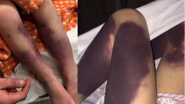 Từ vết bầm nhỏ, chân cô bé 4 tuổi đổi màu đen và suýt phải cưa bỏ vì một căn bệnh phổ biến - Ảnh 2.