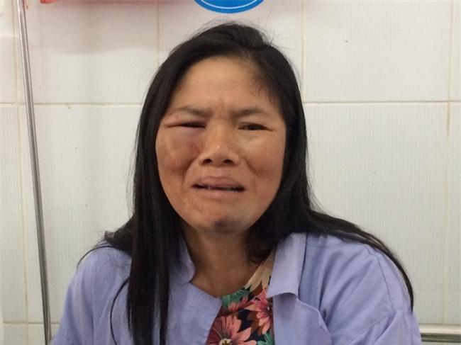 Người đăng facebook việc hai người phụ nữ bị đánh vì nghi bắt cóc trẻ em ở Hà Nội nói gì? - Ảnh 5.