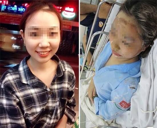 Mẹ của nữ sinh bị tạt axit cho biết chưa nhận được 300 triệu của Trương Ngọc Ánh hứa cho con gái - Ảnh 6.