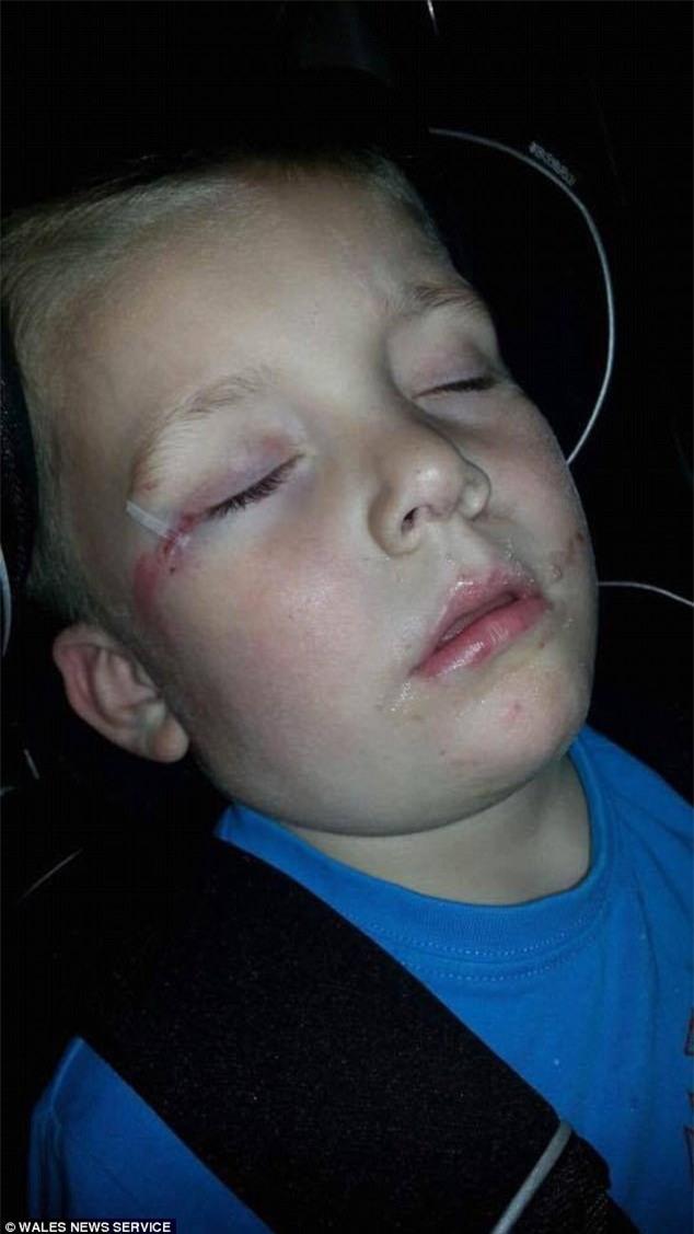 Chỉ sau một cú té, cậu bé 4 tuổi suýt mù và thậm chí mất mạng vì bị nhiễm vi khuẩn ăn thịt người - Ảnh 1.