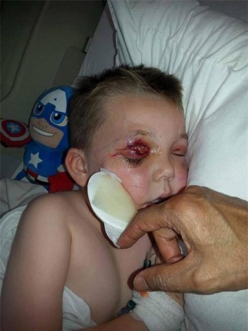 Chỉ sau một cú té, cậu bé 4 tuổi suýt mù và thậm chí mất mạng vì bị nhiễm vi khuẩn ăn thịt người - Ảnh 2.