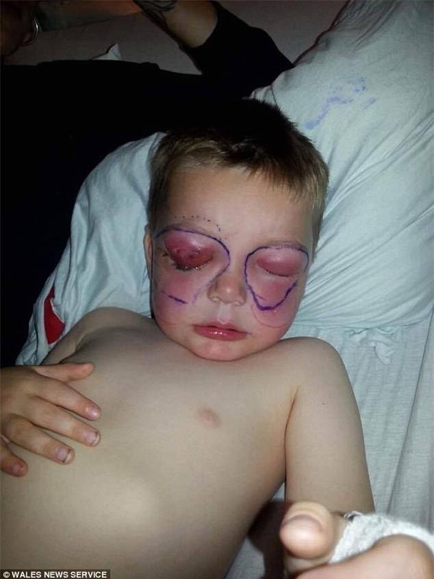 Chỉ sau một cú té, cậu bé 4 tuổi suýt mù và thậm chí mất mạng vì bị nhiễm vi khuẩn ăn thịt người - Ảnh 3.