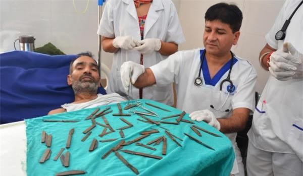 Những thứ được lấy ra từ bụng bệnh nhân khiến bác sĩ không tin nổi, số 1 quá đáng sợ - Ảnh 2.