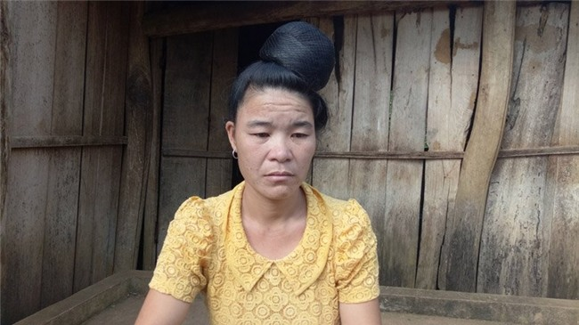 bệnh lạ, Sơn La